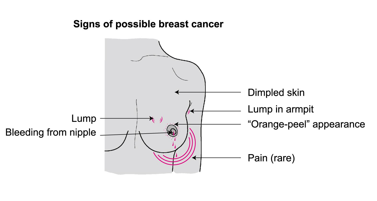 Rate for stage 2 breast cancer