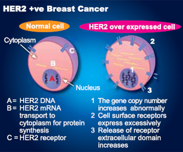 Herceptin found to improve long-term survival of HER2-positive breast cancer patients